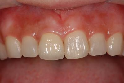 前歯のオールセラミック