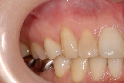 歯ぐきの治療