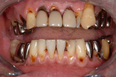 審美歯科 全顎治療 フルマウス
