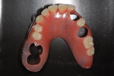 金属の無い入れ歯 ノンクラスプデンチャー