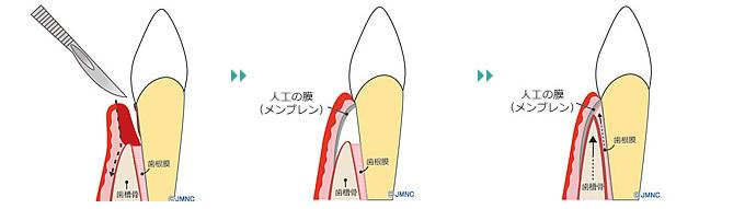 歯周病・歯槽膿漏 | 江川歯科医院 福岡市城南区の歯医者